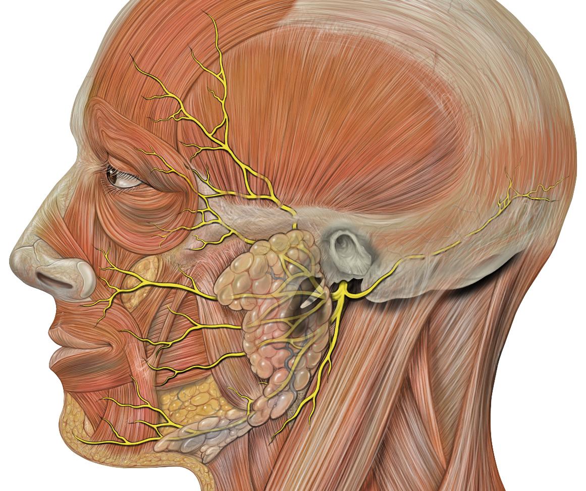 paraliza lica